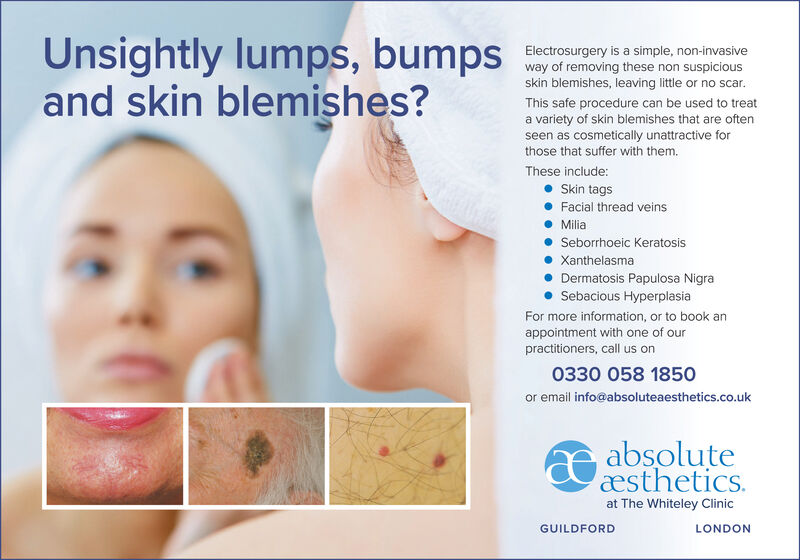 Unsightly lumps, bumpsand skin blemishes?Electrosurgery is a simple, non-invasiveway of removing these non suspiciousskin blemishes, leaving little or no scarThis safe procedure can be used to treata variety of skin blemishes that are oftenseen as cosmetically unattractive forthose that suffer with them.These include:Skin tagsFacial thread veinsMiliaSeborrhoeic KeratosisXanthelasmaDermatosis Papulosa NigraSebacious HyperplasiaFor more information, or to book anappointment with one of ourpractitioners, call us on0330 058 1850or email info@absoluteaesthetics.co.ukabsoluteæstheticsat The Whiteley ClinicGUILDFORDLONDON Unsightly lumps, bumps and skin blemishes? Electrosurgery is a simple, non-invasive way of removing these non suspicious skin blemishes, leaving little or no scar This safe procedure can be used to treat a variety of skin blemishes that are often seen as cosmetically unattractive for those that suffer with them. These include: Skin tags Facial thread veins Milia Seborrhoeic Keratosis Xanthelasma Dermatosis Papulosa Nigra Sebacious Hyperplasia For more information, or to book an appointment with one of our practitioners, call us on 0330 058 1850 or email info@absoluteaesthetics.co.uk absolute æsthetics at The Whiteley Clinic GUILDFORD LONDON