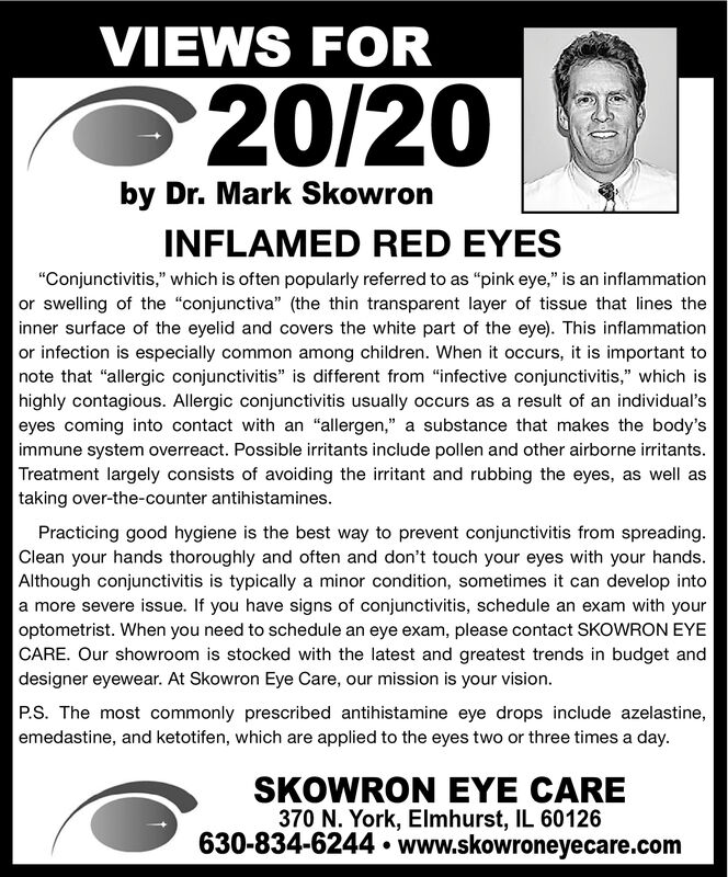 """VIEWS FOR20/20by Dr. Mark SkowronINFLAMED RED EYES""""Conjunctivitis,"""" which is often popularly referred to as """"pink eye,"""" is an inflammationor swelling of the """"conjunctiva"""" (the thin transparent layer of tissue that lines theinner surface of the eyelid and covers the white part of the eye). This inflammationor infection is especially common among children. When it occurs, it is important tonote that """"allergic conjunctivitis"""" is different from """"infective conjunctivitis,"""" which ishighly contagious. Allergic conjunctivitis usually occurs as a result of an individual'seyes coming into contact with an """"allergen,"""" a substance that makes the body'simmune system overreact. Possible irritants include pollen and other airborne irritants.Treatment largely consists of avoiding the irritant and rubbing the eyes, as well astaking over-the-counter antihistamines.Practicing good hygiene is the best way to prevent conjunctivitis from spreading.Clean your hands thoroughly and often and don't touch your eyes with your hands.Although conjunctivitis is typically a minor condition, sometimes it can develop intoa more severe issue. If you have signs of conjunctivitis, schedule an exam with youroptometrist. When you need to schedule an eye exam, please contact SKOWRON EYECARE. Our showroom is stocked with the latest and greatest trends in budget anddesigner eyewear. At Skowron Eye Care, our mission is your vision.P.S. The most commonly prescribed antihistamine eye drops include azelastine,emedastine, and ketotifen, which are applied to the eyes two or three times a day.SKOWRON EYE CARE370 N. York, Elmhurst, IL 60126630-834-6244  www.skowroneyecare.com VIEWS FOR 20/20 by Dr. Mark Skowron INFLAMED RED EYES """"Conjunctivitis,"""" which is often popularly referred to as """"pink eye,"""" is an inflammation or swelling of the """"conjunctiva"""" (the thin transparent layer of tissue that lines the inner surface of the eyelid and covers the white part of the eye). This inflammation or infection is especially commo"""