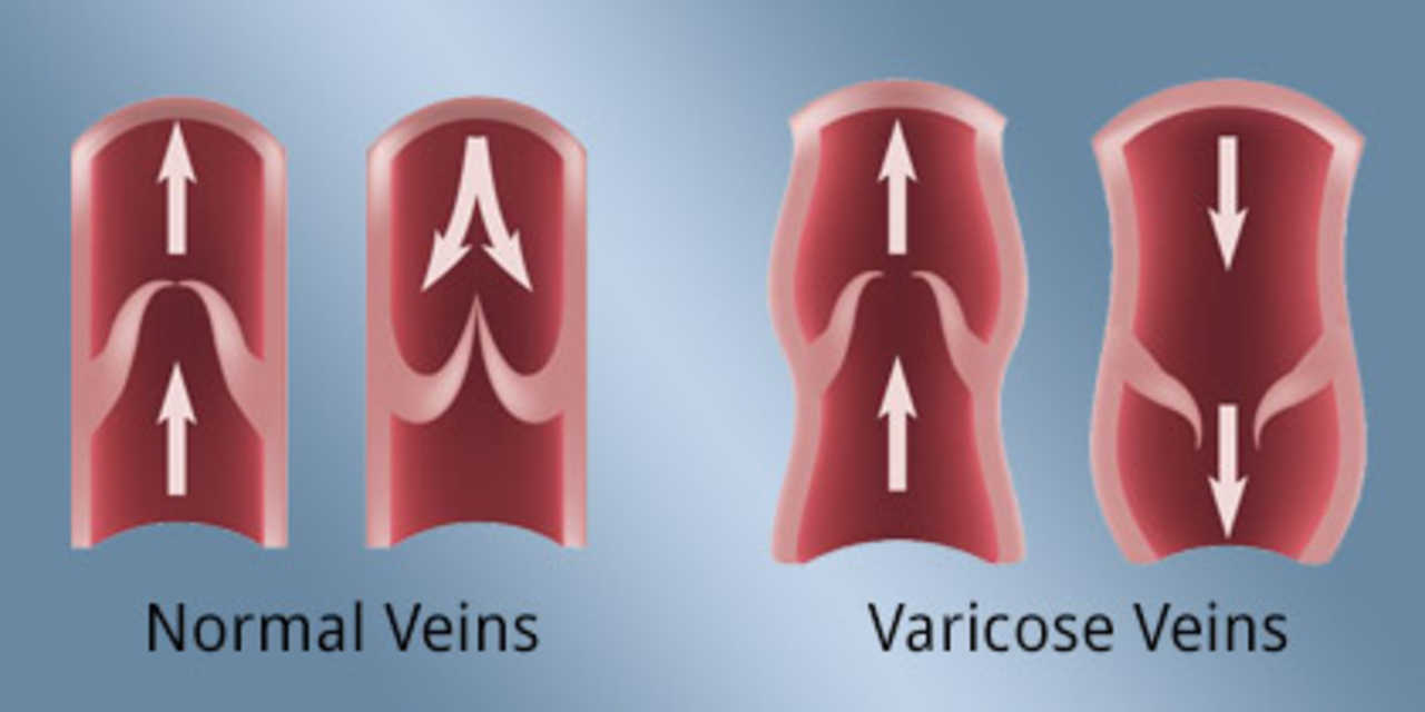Montana Vein Clinic - Andrew Grace MD - Medical - Physicians in Bozeman MT
